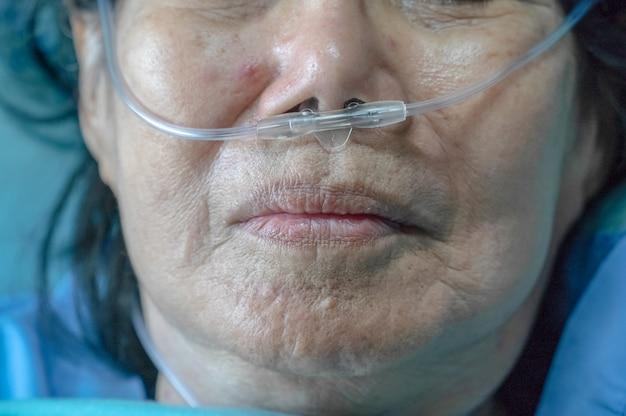 Starsza kobieta z rurką do oddychania przez nos, która pomaga jej w oddychaniu