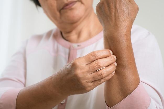 Starsze kobiety drapią ramię w swędzenie ramienia wyprysku