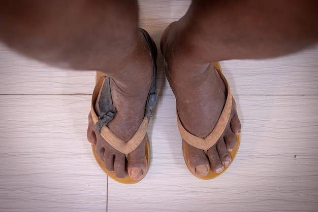 Stary pacjent noszący niewłaściwe obuwie diabetologiczne i wysokie ryzyko infekcji rany