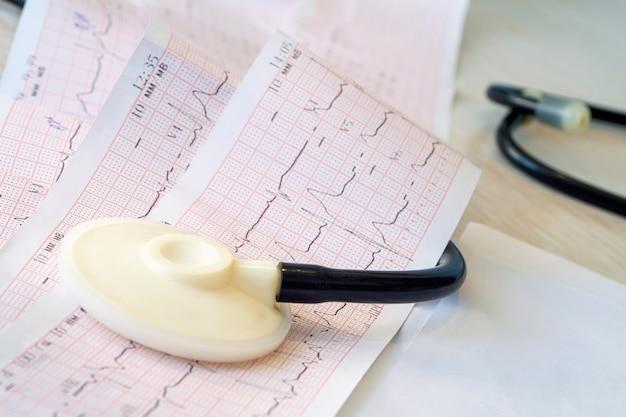 Stetoskop głowy narzędzie leżącego na kardiogram przycięte do pad zbliżenie. pojęcie chorób serca i zapobiegania zawałowi serca. profilaktyczne badanie lekarskie.