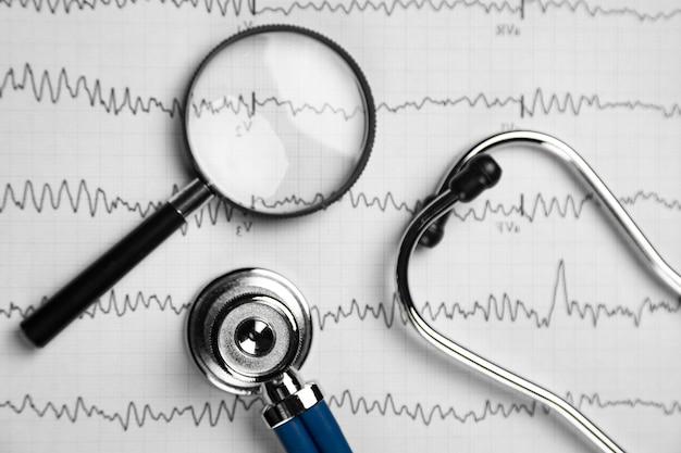 Stetoskop i szkło powiększające leżą na arkuszu z bliska widok z góry ekg