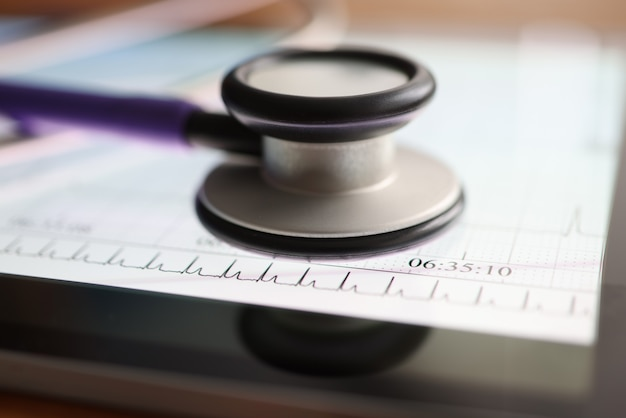 Stetoskop leży na kardiogramie