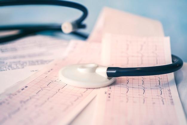 Stetoskop medyczny leżącego na zbliżenie wykresu kardiogram na niebieskim tle. pomoc medyczna, profilaktyka, zapobieganie chorobom lub koncepcja ubezpieczenia. opieka kardiologiczna, zdrowie, ochrona i profilaktyka