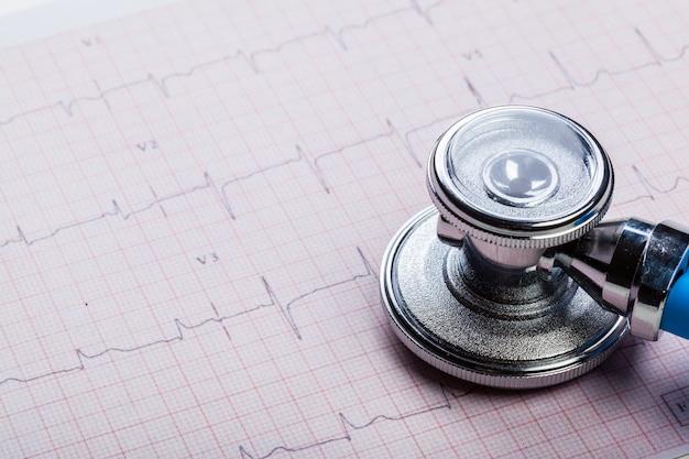 Stetoskop metalowy na kardiogramie