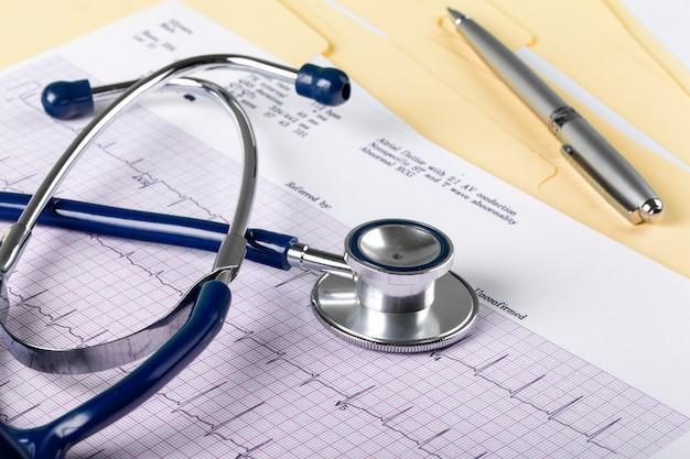 Stetoskop na kardiogramie. koncepcja medyczna