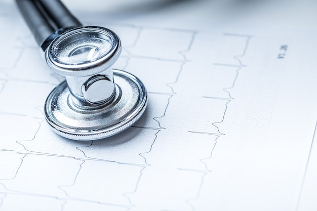 Stetoskop na wydruku monitora serca. wykres elektrokardiogramu i stetoskop.