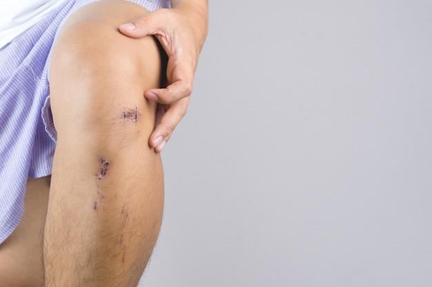 Stłuczenie rany na strupie z niewielkim uszkodzeniem na skórze nóg od upadku lub wypadku na rowerze