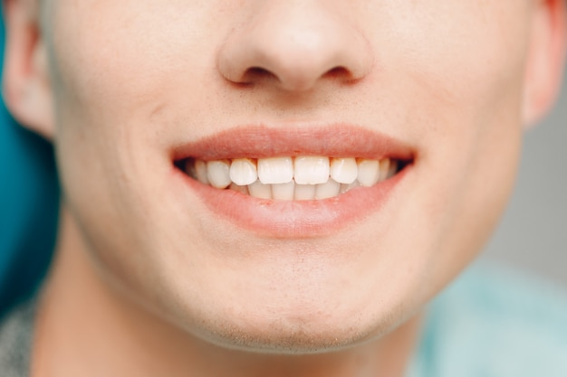Stomatologia. dentysta i pacjent. klinika dentystyczna. zamknij zęby.