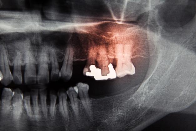 Stomatologiczny film rentgenowski do pielęgnacji zębów