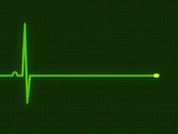 Streszczenie serce bije kardiogram