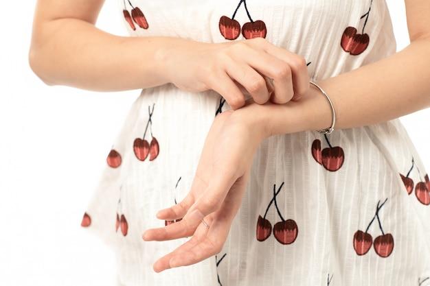 Swędząca kobieta drapie się po skórze dłoni; młoda azjatycka kobieta drapiąca swędzącą dłoń z wysypką alergiczną; model młodych dorosłych azjatyckich kobieta.