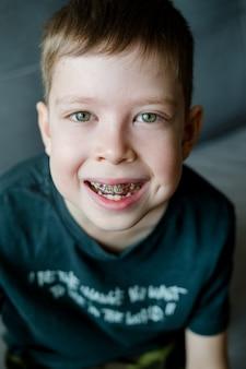 Szczegół portret chłopca w szelkach. korekta zgryzu u dzieci. chłopiec nosi płytkę dentystyczną. dziecko uśmiecha się z aparatami ortodontycznymi w ustach. wyrafinowana konstrukcja do korygowania krzywych zębów
