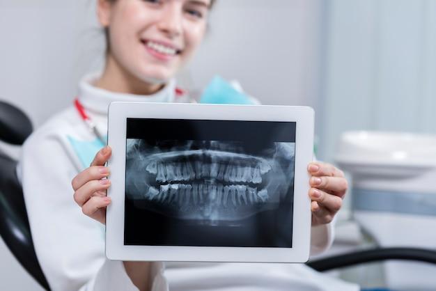 Szczęśliwa młoda kobieta pokazuje jej zębu promieniowanie rentgenowskie