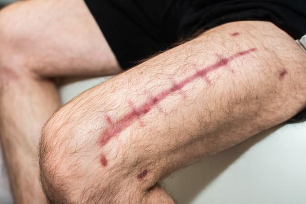 Szew pooperacyjny na męskiej nodze. duża blizna na udzie mężczyzny. czerwone szwy. powrót do zdrowia i gojenie się ran.