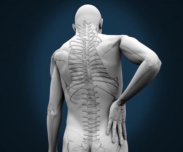 Szkielet mający ból na plecach