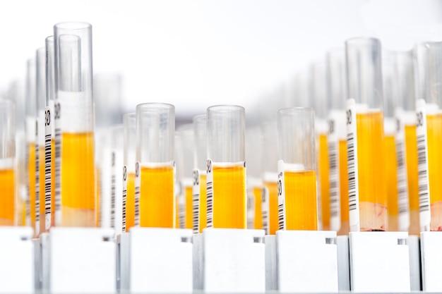Szklane probówki laboratoryjne wypełnione pomarańczowym płynem do eksperymentu w laboratorium naukowo-badawczym