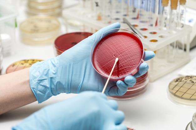 Technik laboratoryjny ręcznie sadząc szalkę petriego. laboratorium, badania, analizy. zbliżenie