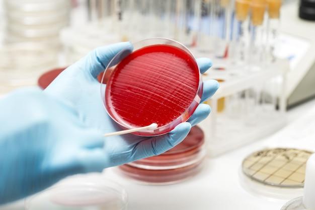 Technik laboratoryjny ręcznie sadzi szalkę petriego