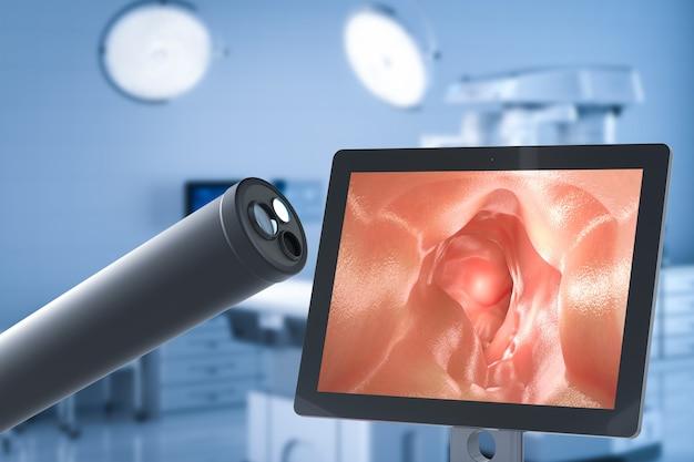Technologia medyczna z endoskopem z monitorem jelita