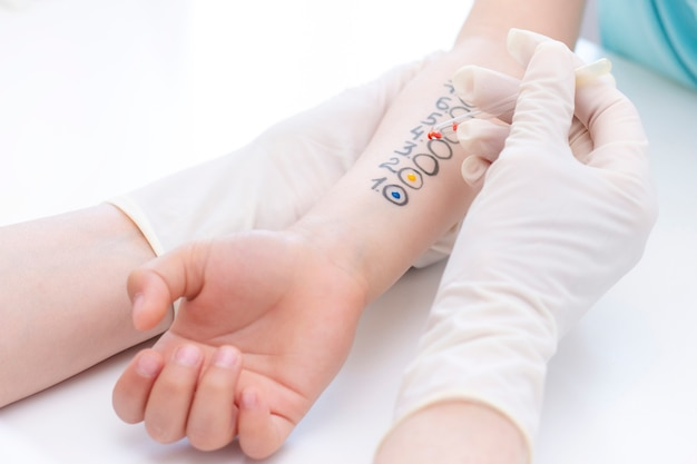 Test alergenów pod ręką. dziecko poddawane zabiegowi alergenowego testu skórnego w klinice.