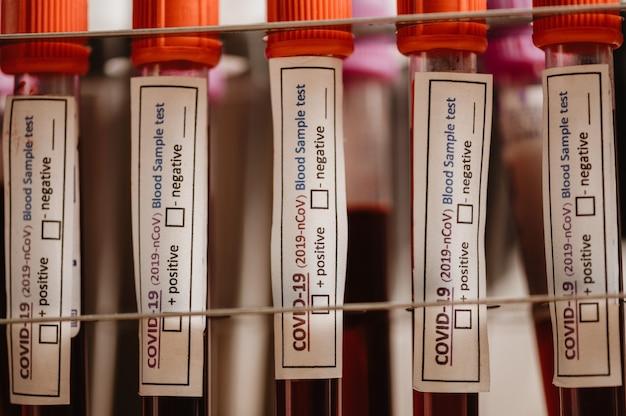 Test covid-19 i laboratoryjna próbka krwi do diagnozowania nowego zakażenia koronawirusem