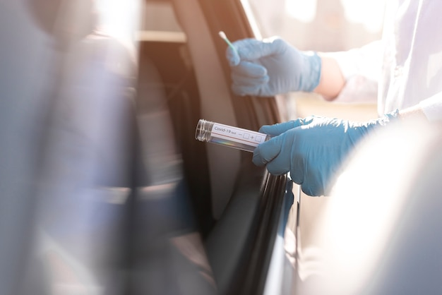 Test koronawirusa i osoba w rękawicach obok samochodu