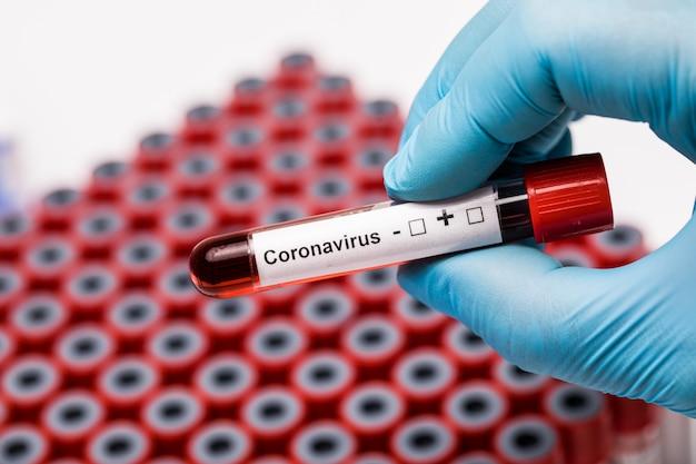 Test trzymając się za ręce covid19. probówka medyczna z próbkami krwi