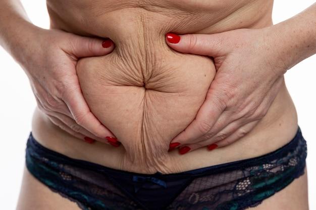 Tłuszcz fałdy na grubym kobiecym brzuchu. otyłość i nadwaga.