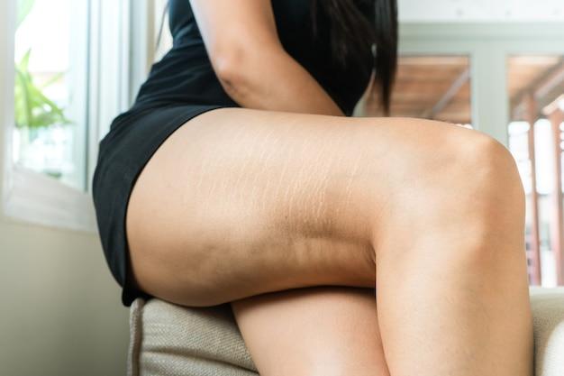 Tłuszczu cellulit i rozstępy na nodze skóry opalonej kobiety w domu, koncepcja stylu diety kobiet