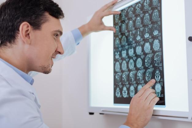 To jest to. wesoły profesjonalny przystojny onkolog patrząc na zdjęcie z rezonansu magnetycznego i wskazując na jedno z przedstawionych na zdjęciu, wiedząc, jak poradzić sobie z problemem