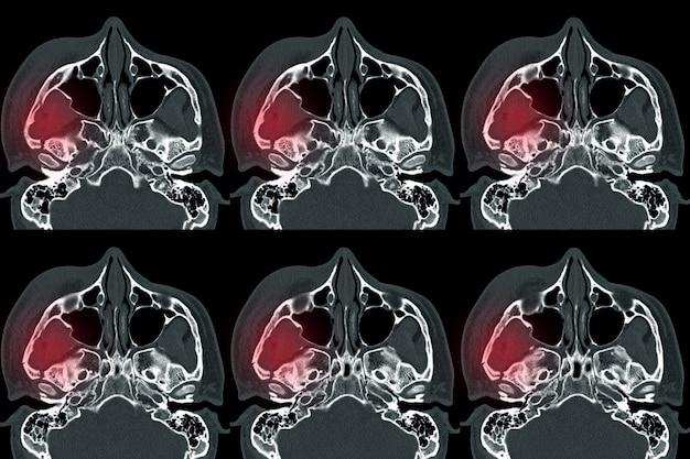 Tomografia komputerowa (tomografia komputerowa) orbity złamana w miejscu przemieszczenia na bocznej i środkowej ścianie prawej orbity.