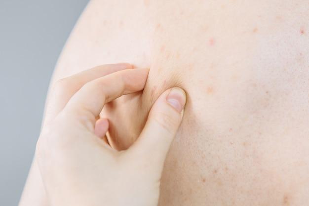 Trądzik z powrotem, dermatolog sprawdzający człowieka