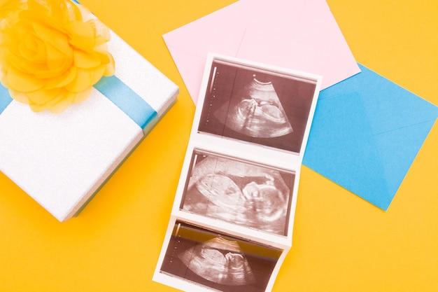 Trzy zdjęcia usg na różowej i niebieskiej kopercie
