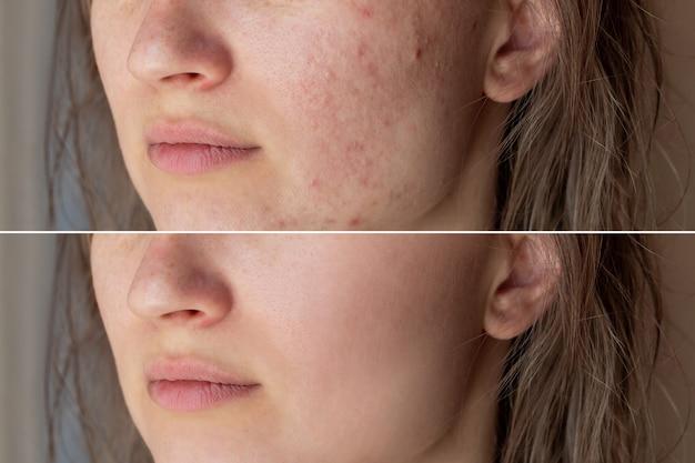 Twarz młodej kobiety przed i po leczeniu trądziku na twarzy wypryski czerwone blizny wysypka na policzkach