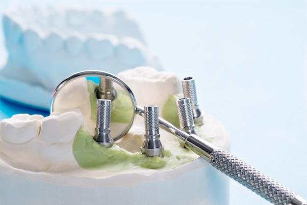 Tymczasowy łącznik implantu dentystycznego