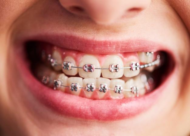 Ujęcie zębów dziecka z aparatem ortodontycznym