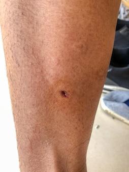 Ukąszenia psa rany na łydce nogi