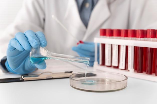 Ułożenie próbek krwi koronawirusa w laboratorium
