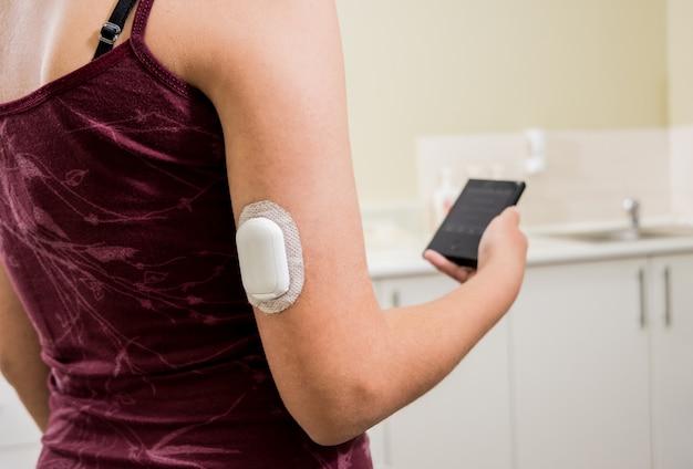 Urządzenie medyczne do sprawdzania poziomu glukozy. kapsuła do ciągłego monitorowania glukozy. nowoczesna technologia bezprzewodowa.