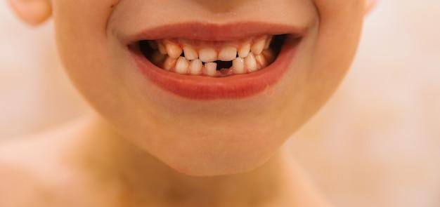 Uśmiech dziecka, które straciło mleczny ząb. dbaj o zęby dzieci. hygiena jamy ustnej.