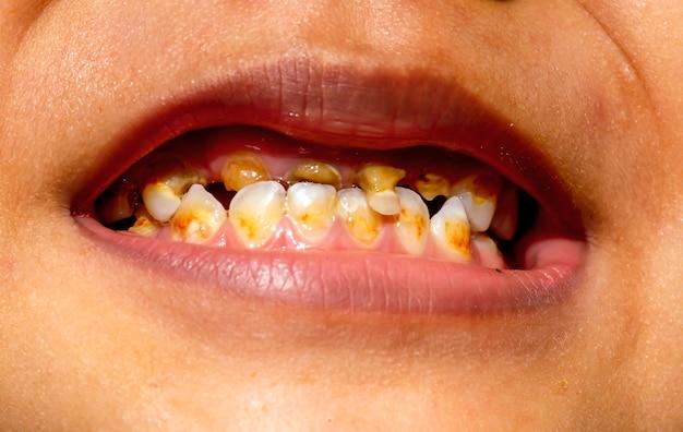 Uśmiech z próchnicą na dziecku, w przednich zębach. koncepcja opieki stomatologicznej