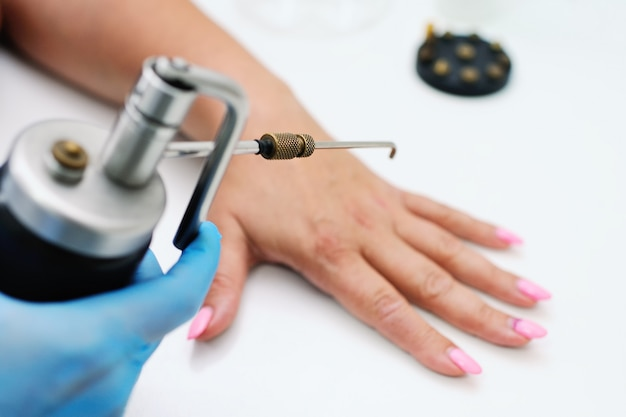 Usuwanie brodawek w klinice dermatologicznej. lekarz usuwa formacje skóry za pomocą specjalnego sprzętu - kriodestruktor. brodawczaki, brodawki, onkologia