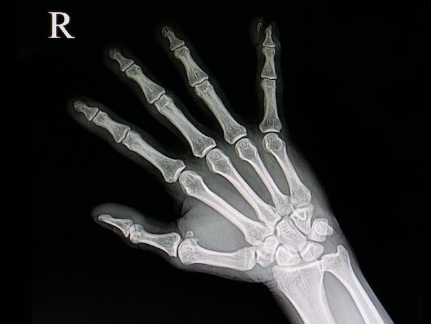 Uszkodzenie końcówki palca