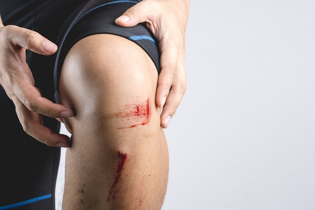 Uszkodzenie ran po kolanie, z niewielkim kamieniem i kurzem po wypadku rowerowym