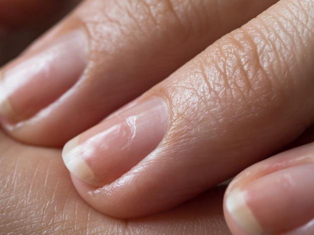 Uszkodzone paznokcie po lakierowaniu żelowym. ścieśniać.