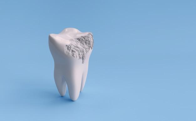 Uszkodzony ząb na białym tle na niebieskim tle ze ścieżką przycinającą. ilustracja renderowania 3d
