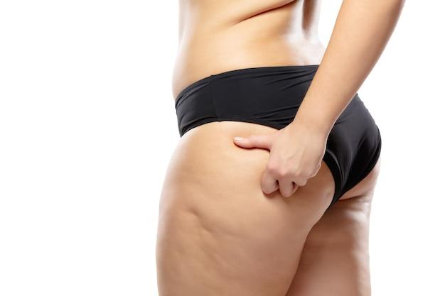 Widok z boku. kobieta z nadwagą z cellulitem na nogach i pośladkach, otyłość kobiecego ciała w czarnej bieliźnie na białym tle. skóra pomarańczowa, liposukcja, zabiegi zdrowotne i upiększające.