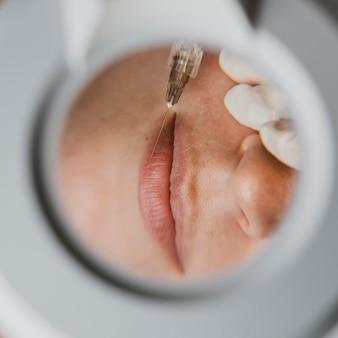 Widok z góry kobiety podczas zabiegu kosmetycznego w centrum odnowy biologicznej