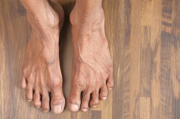 Widok z góry stóp starszych kobiet na podłodze