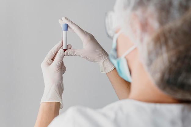 Widok z tyłu lekarza trzymającego próbkę krwi